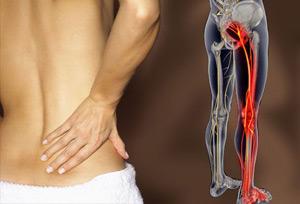 При заболевании пациенты жалуются на неопределенные боли в конечностях или спине