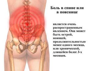 Симптомы боли в спине и пояснице