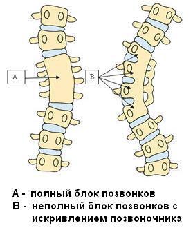Сращение позвонков после компрессионного перелома
