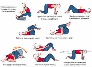 Комплекс упражнений при радикулите