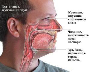 Симптомы аллергии и ее причины