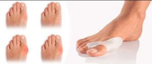 Пластины от косточек на ноге лечение