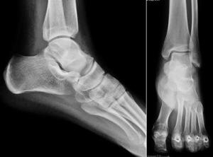 Снимок пяточной кости в двух проекциях