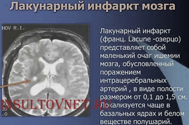 Признаки лакунарного инсульта