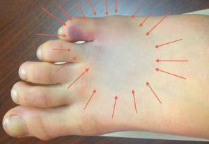 При переломе стопы, чаще всего повреждаются плюсневые кости