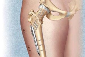 Основная задача титановой пластины - возобновление первоначальной формы кости