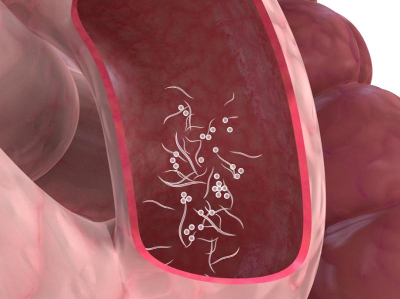 Лямблии в кишечнике
