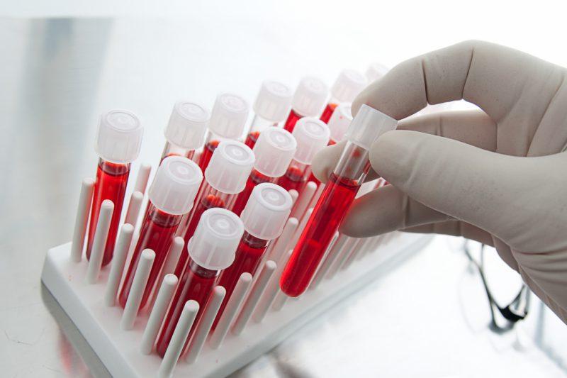 кровь на гемоглобин