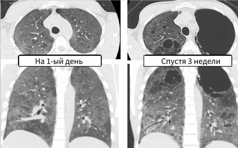 пневмоцистная пневмония течение заболевания