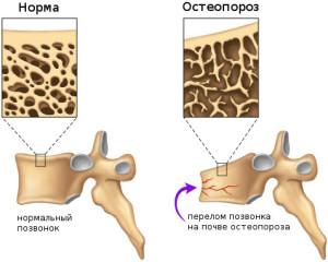 При остеопорозе возрастает риск получения компрессионного перелома
