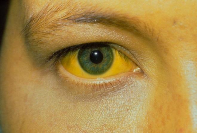 Желтуха - осложнение аскаридоза
