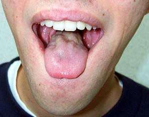 Бульбарный синдром