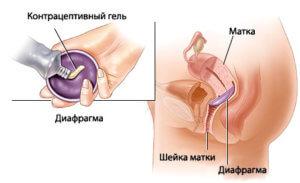 Использование гормонального геля