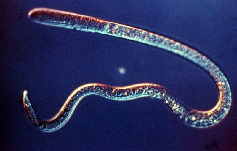 паразиты у человека