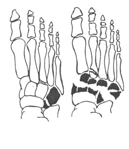 Перелом костей предплюсны