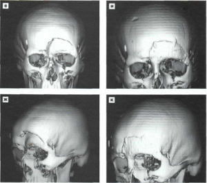 Снимок МРТ при переломе