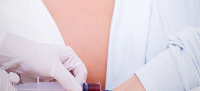 Анализ крови на токсоплазмоз при беременности