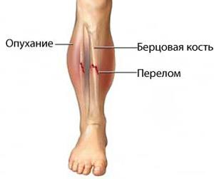 При переломе наблюдается отечность ноги и гематомы