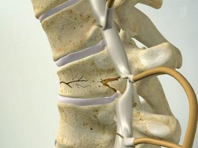 Перелом позвоночника считается тяжелым повреждением