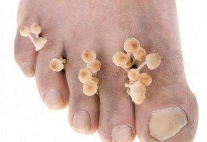 Грибок на ноге симптомы