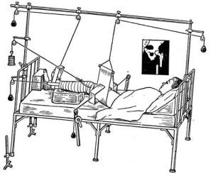 Скелетное вытяжение бедра