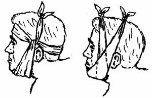 Фиксирование (своеобразное шинирование) челюсти плотной повязкой