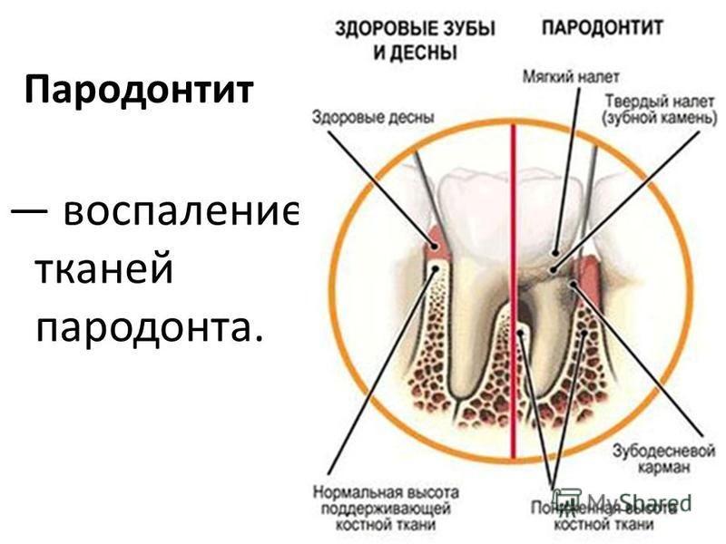 Причины запаха изо рта после удаления зуба