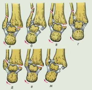 Типу смещения голеностопа при переломе