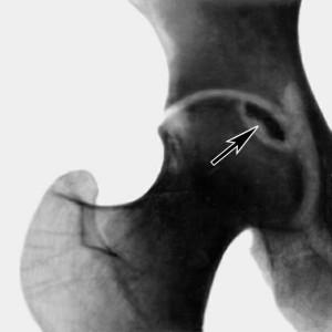 Некроз кости асептический - патологический процесс