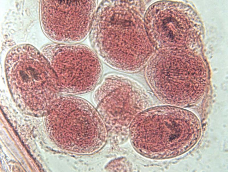 размножение эхинококка
