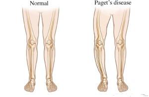 Болезнь Педжета - хроническое заболевание скелета у взрослого