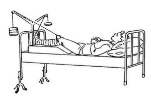 Вытяжение при переломе