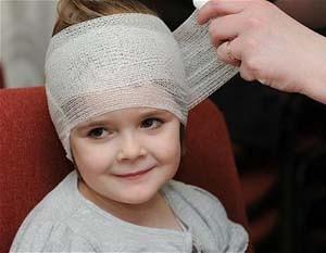 Наложение повязки при черепно-мозговой травме