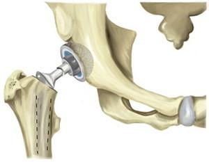 Эндопротезирование - операция в ходе которой разрушенные части заменяются искусственными