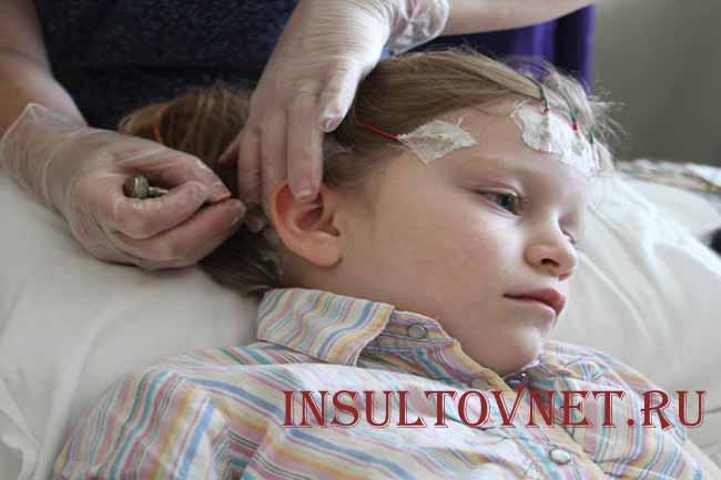 Наследственная эпилепсия