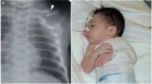 Рентген снимок и наложение тугой повязки при переломе ключицы