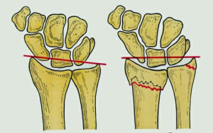 После перелома лучевой кости выпирает шиловидный отросток