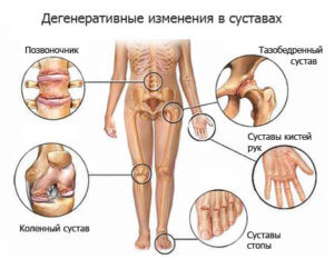 Причины боли в суставах