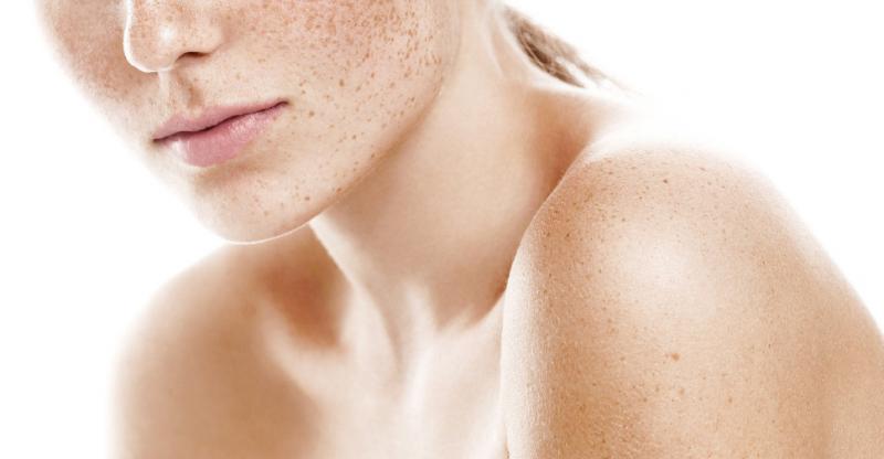 веснушки на кожи