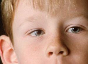 Синдром ленивого глаза Амблиопия