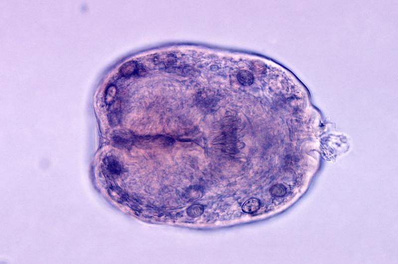 Эхинококк альвеолярный