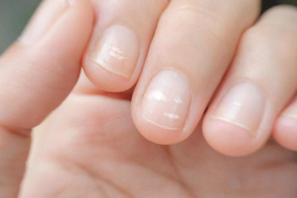 Почему на ногтях появляются белые пятна и что с этим делать?
