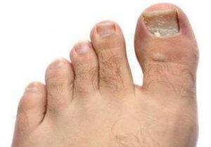 Болезнь ногтей на ногах и лечение