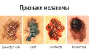 Признаки меланомы и ее симптомы