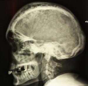 Рентгенологическая диагностика черепа