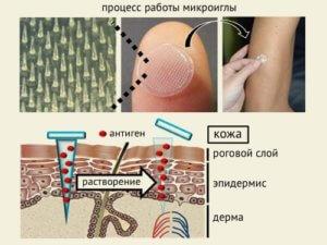 Действие микро иглы в пластыре от гриппа