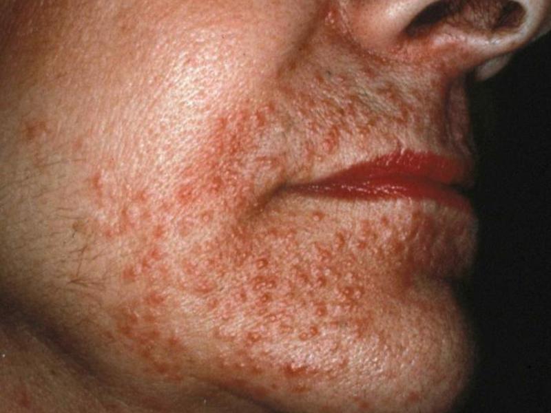 Демодекс на лице