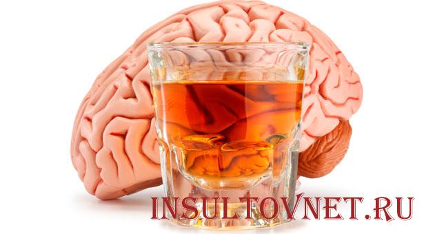 Алкоголь и инсульт
