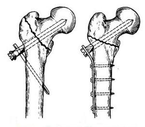 Остеосинтез вертельных переломов