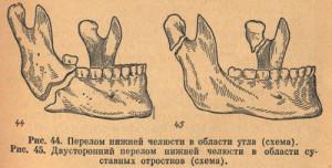 Двусторонний перелом нижней челюсти